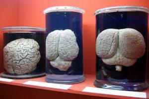 GEWINNSPIEL: Erna verlost eine Hirnvergrößerung!!!